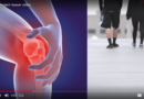 Discover the video of OActive: Transform and Accelerate the Osteoarthritis Diagnosis and Prediction