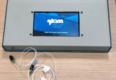 The European project GLAM develops a multiplexed biosensor for personalized diagnosis and therapy for bladder cancers