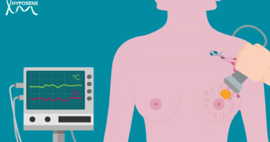 HYPOSENS releases video: better detection of breast cancer metastasis