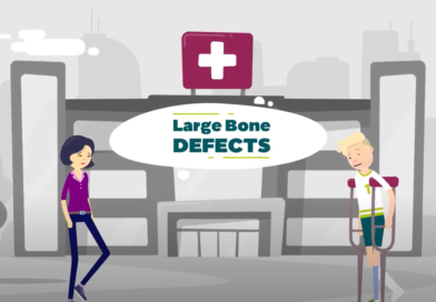 Improved treatment options for patients with large bone defects: Horizon2020 project SBR releases animated clip